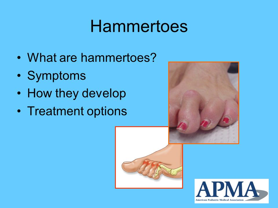 Hammertoes What are hammertoes? Symptoms How they develop Treatment options