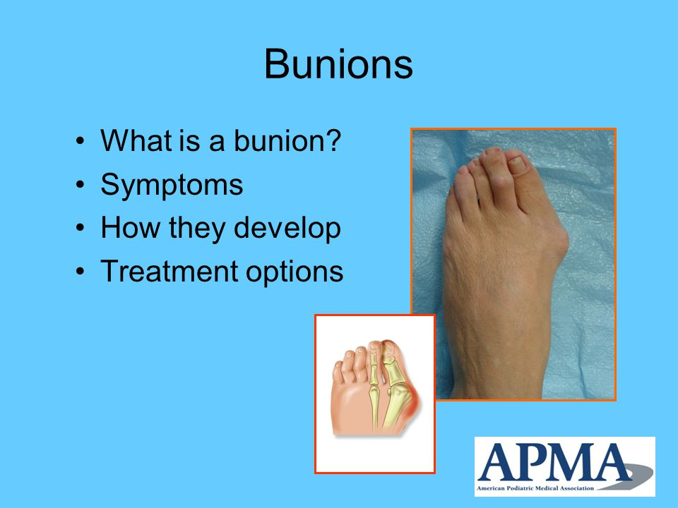 Bunion Surgery Recuperation takes time There may be swelling and some discomfort for several weeks following the procedure Pain is usually managed with medication prescribed by the podiatrist