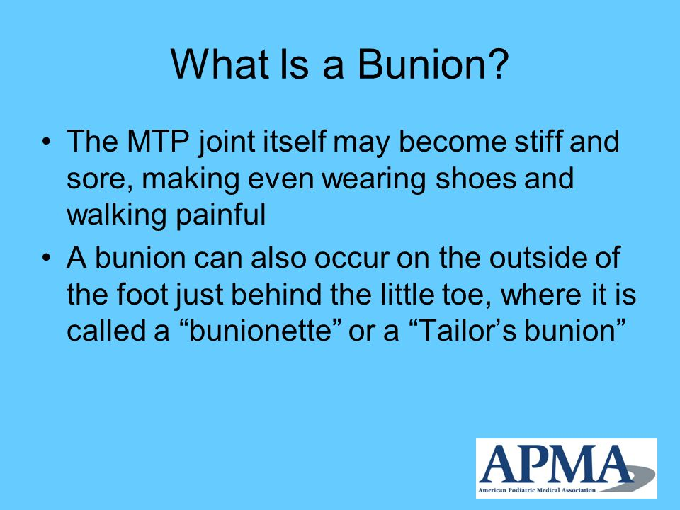 What Is a Bunion.