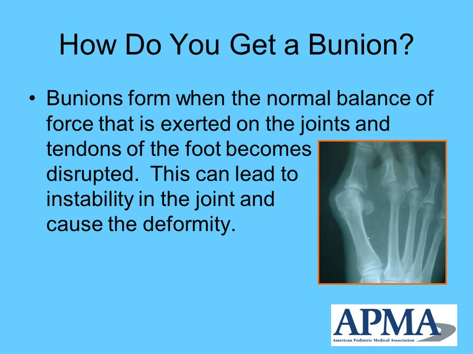 How Do You Get a Bunion.