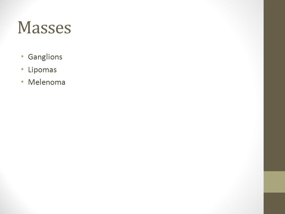Masses Ganglions Lipomas Melenoma