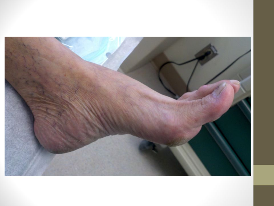 Case study #2 Return to wound clinic 2 days later with necrotic fourth toe.