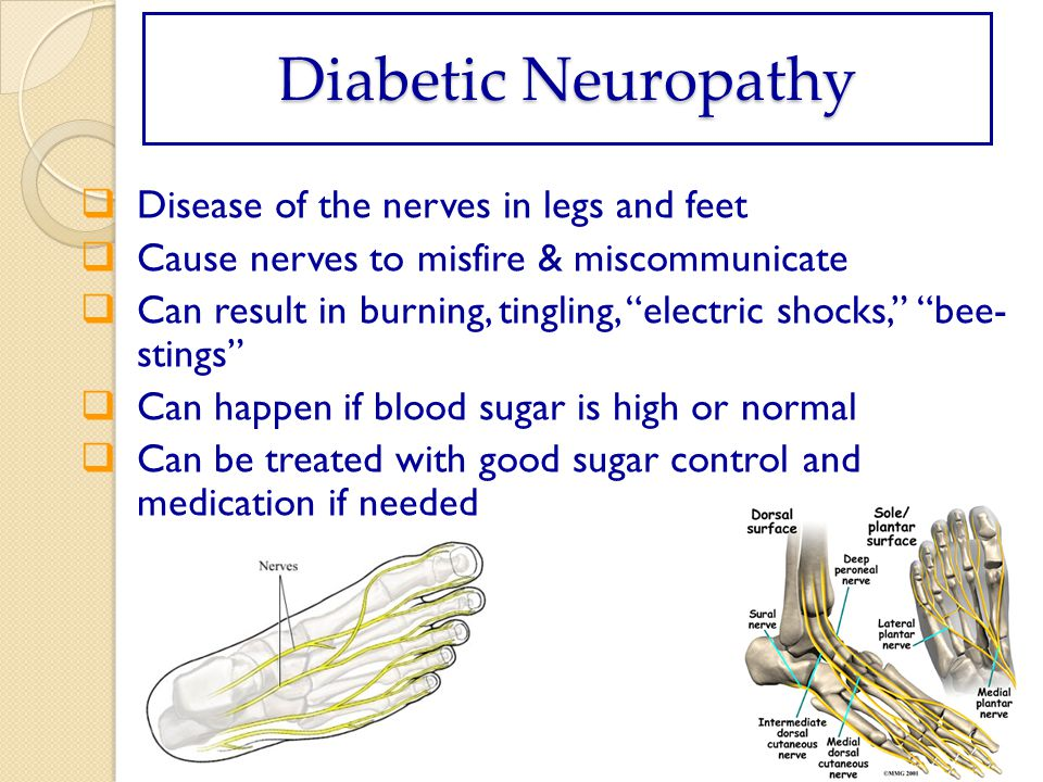 Diabetic Neuropathy Disease of the nerves in legs and feet Cause nerves to misfire & miscommunicate Can result in burning, tingling, electric shocks, bee- stings Can happen if blood sugar is high or normal Can be treated with good sugar control and medication if needed