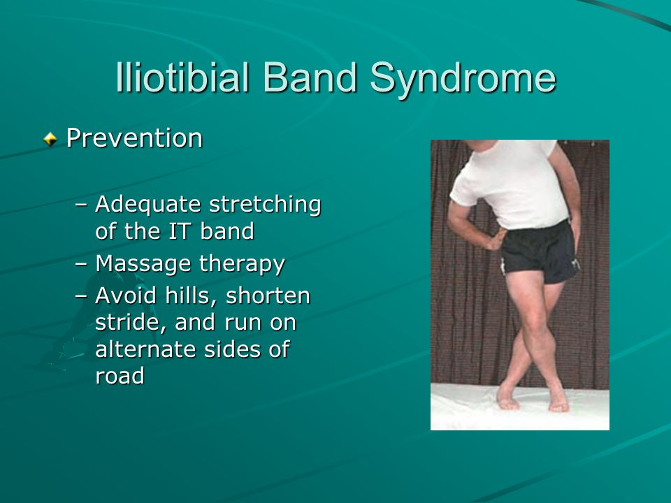 Iliotibial Band Syndrome Prevention –Adequate stretching of the IT band –Massage therapy –Avoid hills, shorten stride, and run on alternate sides of r