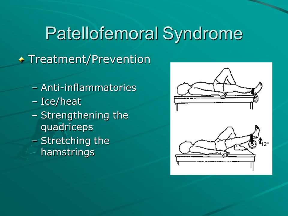 Patellofemoral Syndrome Treatment/Prevention –Anti-inflammatories –Ice/heat –Strengthening the quadriceps –Stretching the hamstrings