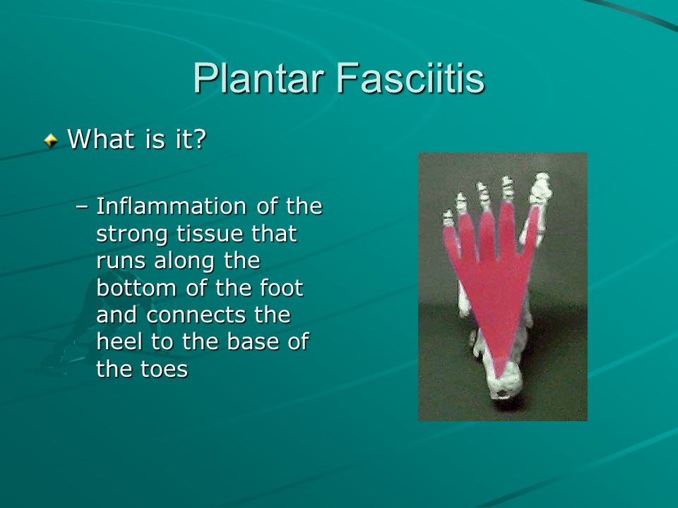 Plantar Fasciitis What is it? –Inflammation of the strong tissue that runs along the bottom of the foot and connects the heel to the base of the toes