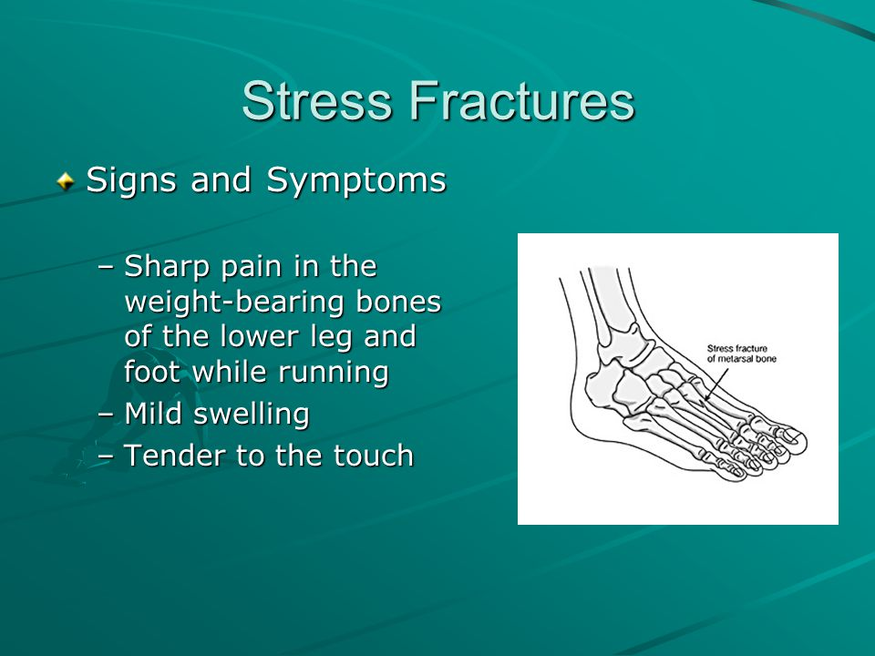 Stress Fractures Treatment –Rest and ice –Engage in a pain-free activity during the six to eight weeks it takes most stress fractures to heal –Use of a bone stimulator
