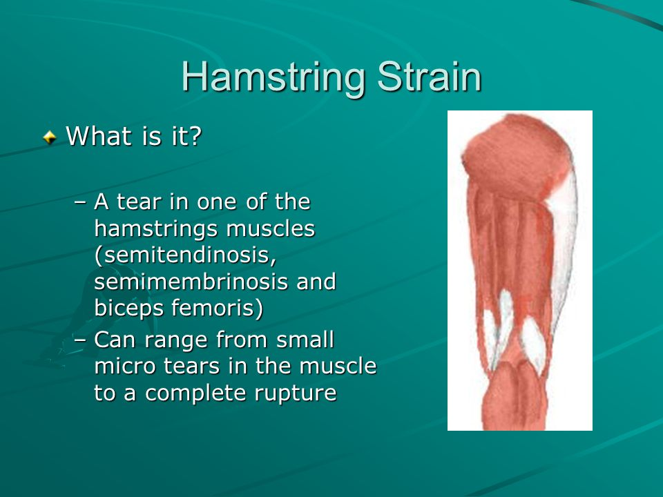 Hamstring Strain Causes –Frequently occur during sprinting –Can occur during an isolated athletic activity (acute) or result from persistent repetitive stress (chronic)