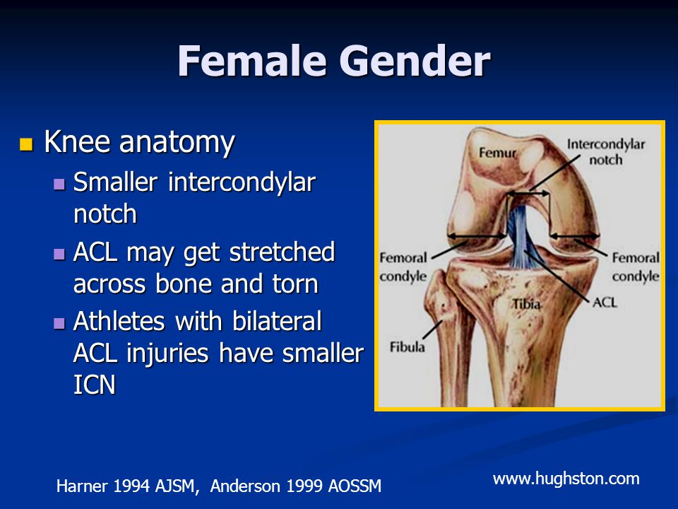Female Gender Knee anatomy Knee anatomy Smaller intercondylar notch Smaller intercondylar notch ACL may get stretched across bone and torn ACL may get stretched across bone and torn Athletes with bilateral ACL injuries have smaller ICN Athletes with bilateral ACL injuries have smaller ICN Harner 1994 AJSM, Anderson 1999 AOSSM www.hughston.com
