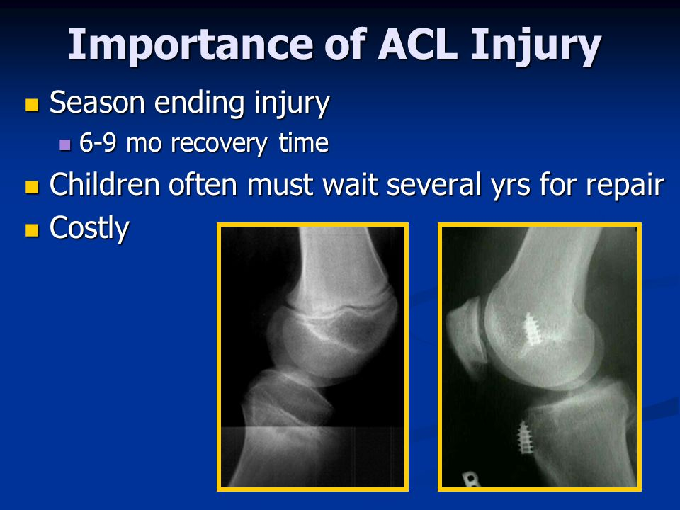 Importance of ACL Injury Season ending injury Season ending injury 6-9 mo recovery time 6-9 mo recovery time Children often must wait several yrs for repair Children often must wait several yrs for repair Costly Costly