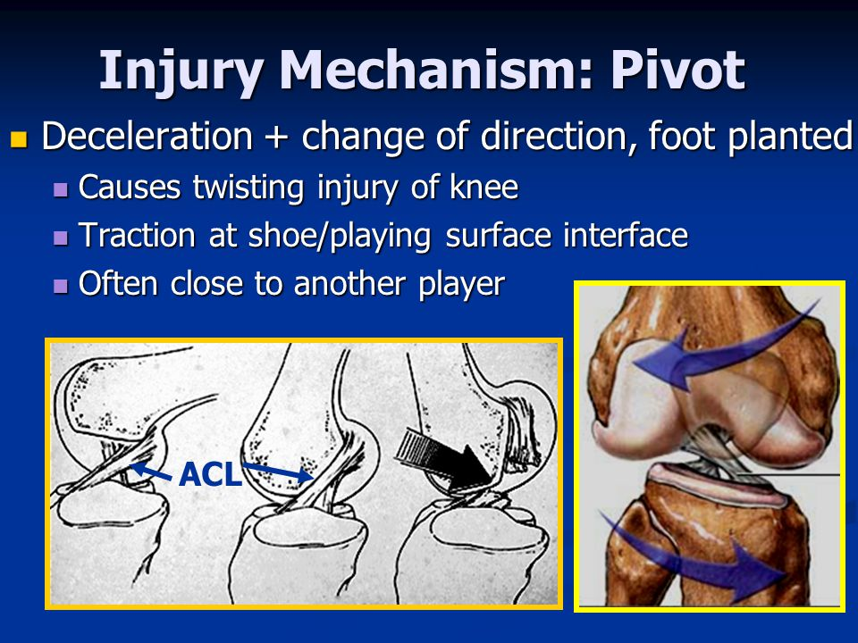 Injury Mechanism: Pivot Deceleration + change of direction, foot planted Deceleration + change of direction, foot planted Causes twisting injury of knee Causes twisting injury of knee Traction at shoe/playing surface interface Traction at shoe/playing surface interface Often close to another player Often close to another player ACL