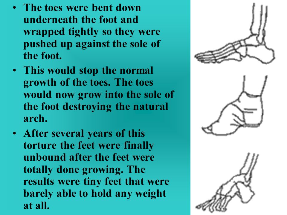 The toes were bent down underneath the foot and wrapped tightly so they were pushed up against the sole of the foot. This would stop the normal growth