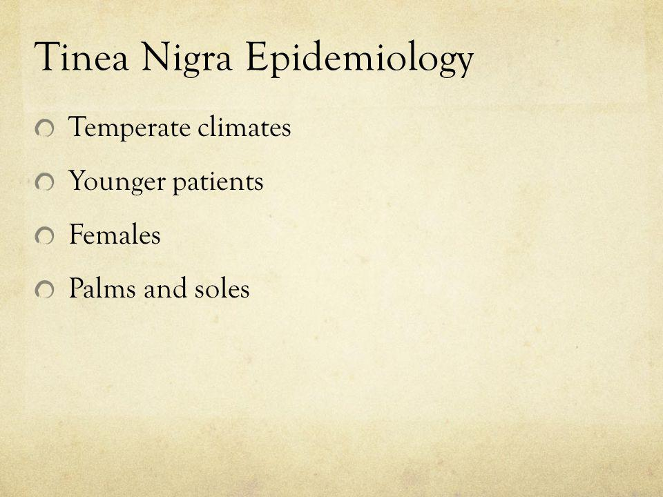 Tinea Nigra Epidemiology Temperate climates Younger patients Females Palms and soles