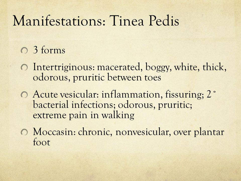 Manifestations: Tinea Pedis 3 forms Intertriginous: macerated, boggy, white, thick, odorous, pruritic between toes Acute vesicular: inflammation, fiss