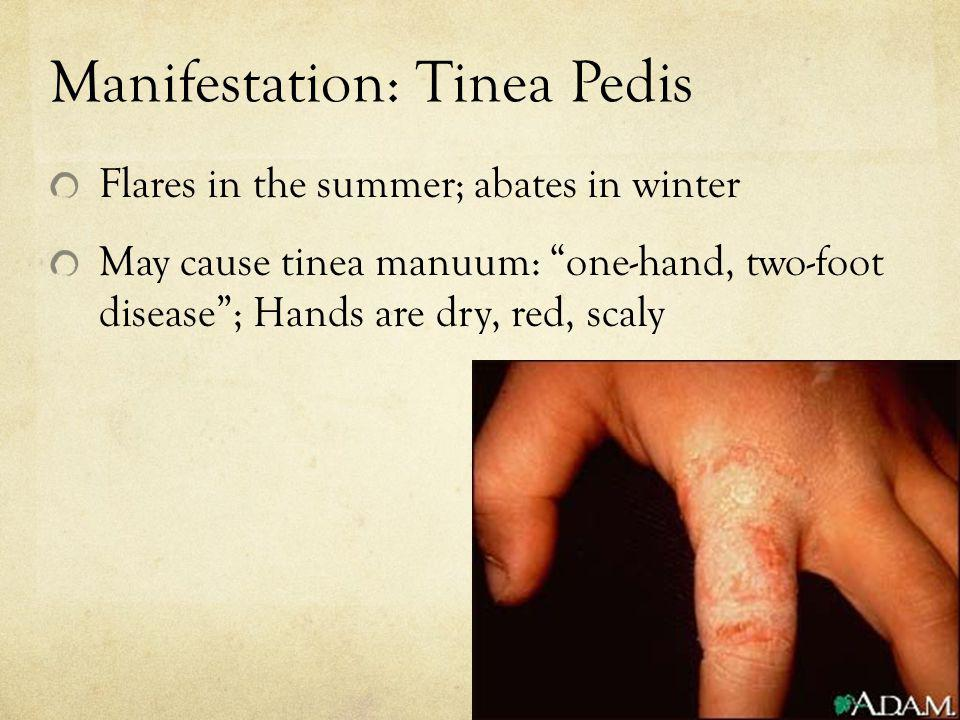 Manifestation: Tinea Pedis Flares in the summer; abates in winter May cause tinea manuum: one-hand, two-foot disease; Hands are dry, red, scaly