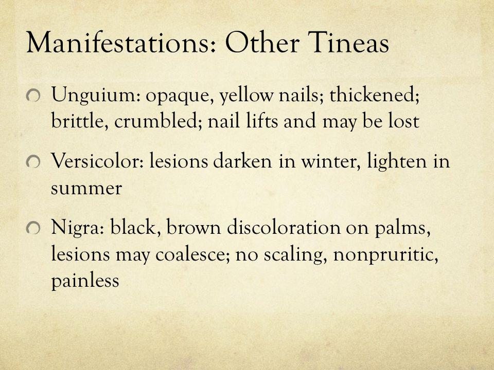 Manifestations: Other Tineas Unguium: opaque, yellow nails; thickened; brittle, crumbled; nail lifts and may be lost Versicolor: lesions darken in win
