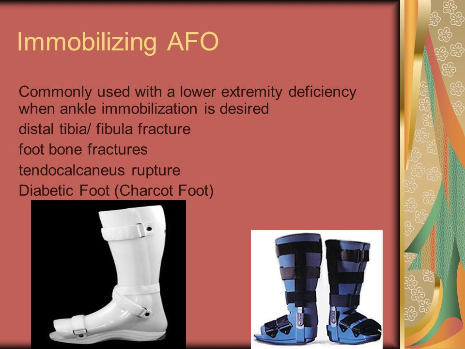 Immobilizing AFO Commonly used with a lower extremity deficiency when ankle immobilization is desired distal tibia/ fibula fracture foot bone fracture