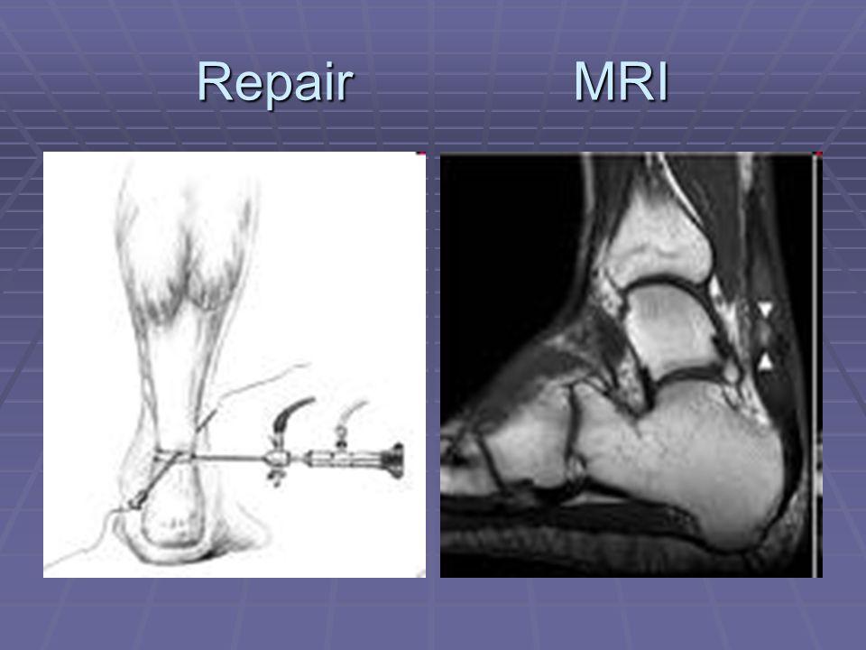 Repair MRI