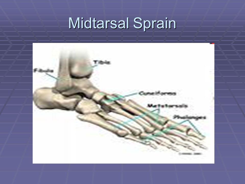 Midtarsal Sprain