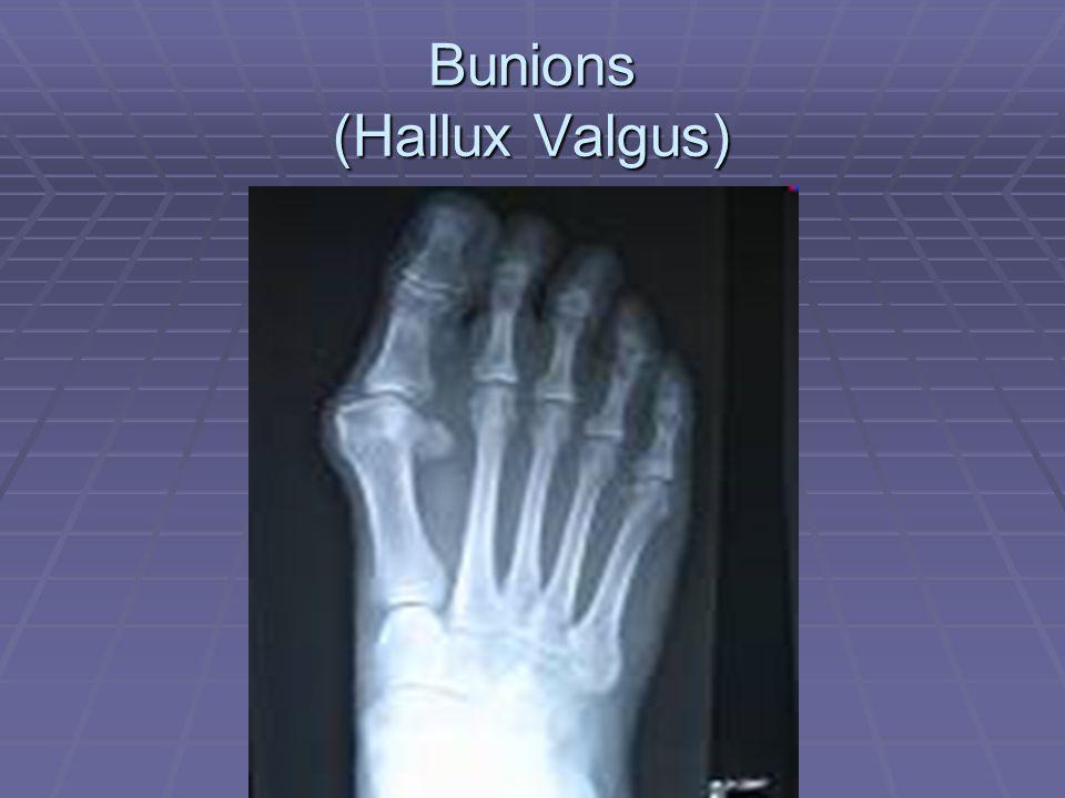 Bunions (Hallux Valgus)
