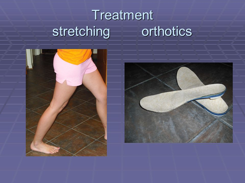 Treatment stretching orthotics