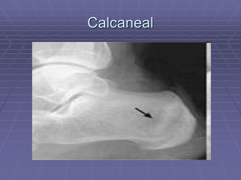 Calcaneal