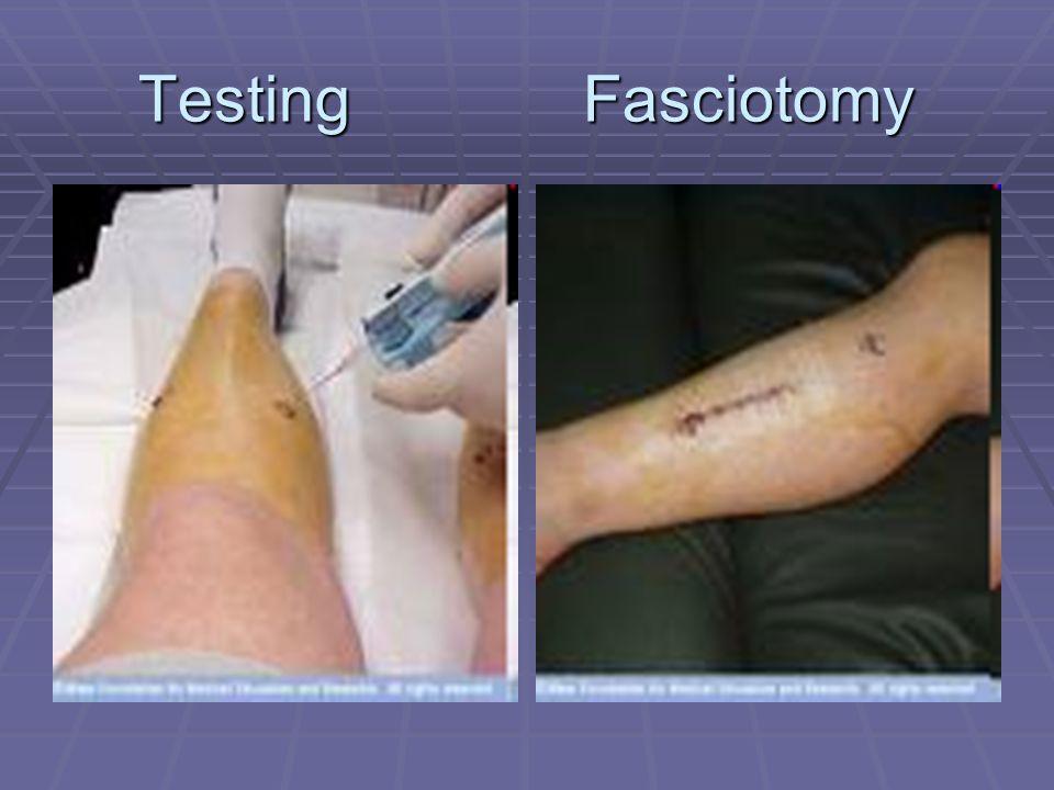 Testing Fasciotomy