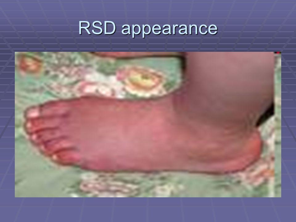 RSD appearance