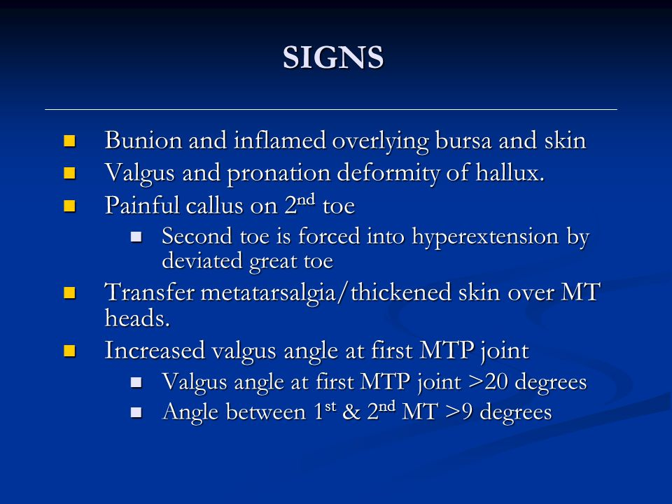 SIGNS Bunion and inflamed overlying bursa and skin Bunion and inflamed overlying bursa and skin Valgus and pronation deformity of hallux. Valgus and p