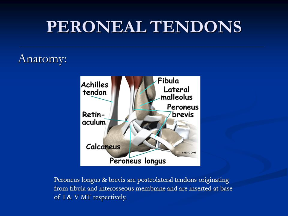 PERONEAL TENDONS Anatomy: Peroneus longus & brevis are posteolateral tendons originating from fibula and interosseous membrane and are inserted at bas