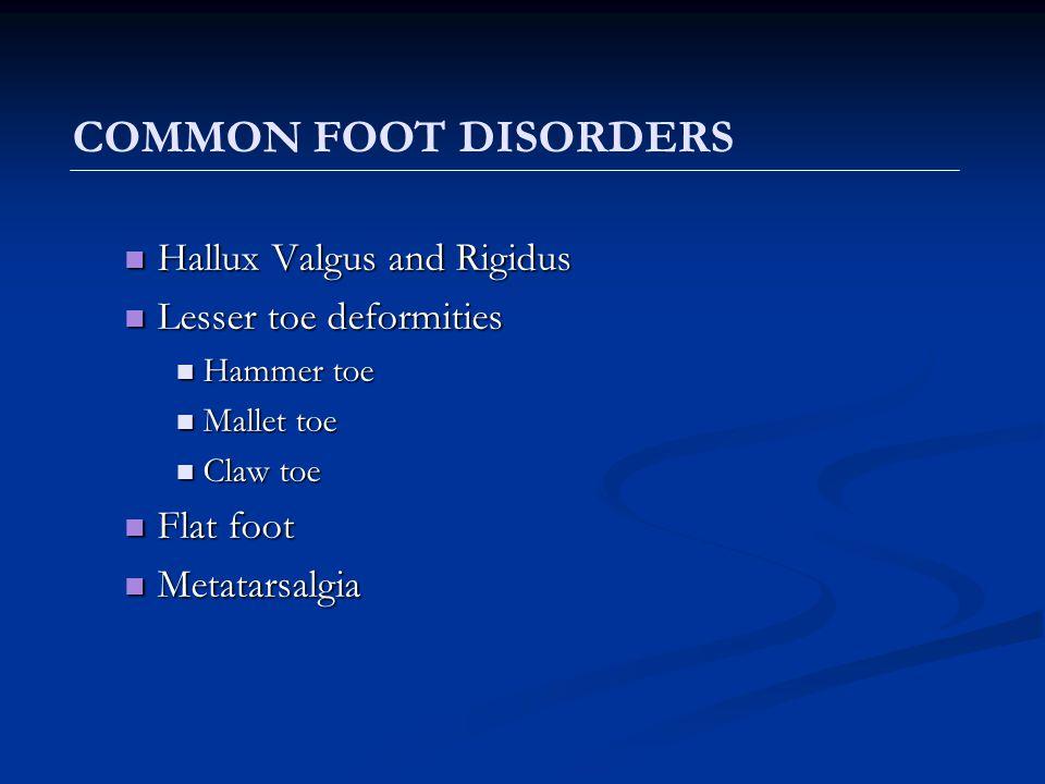 Commonly seen in females Commonly seen in females 82% of women report having foot pain, while 72% report one or more foot deformities.