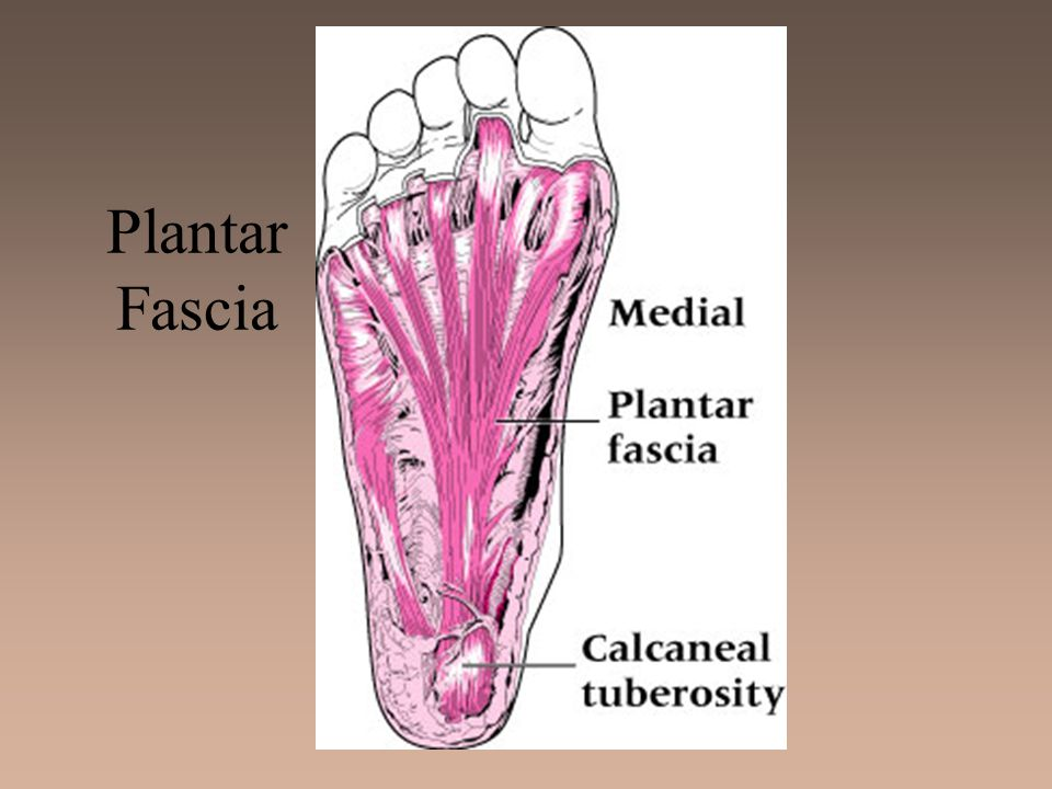 Bunion (Hallux Valgus Deformity) –Etiology Exostosis of 1st metatarsal head; associated with forefoot varus; shoes that are too narrow, pointed or short Bursa becomes inflamed and thickens, enlarging joint, and causing lateral malalignment of great toe Bunionette (Tailors bunion) impacts 5th metatarsophalangeal joint - causes medial displacement of 5th toe –Sign and Symptoms Tenderness, swelling, and enlargement of joint initially As inflammation continues, angulation increases causing painful ambulation