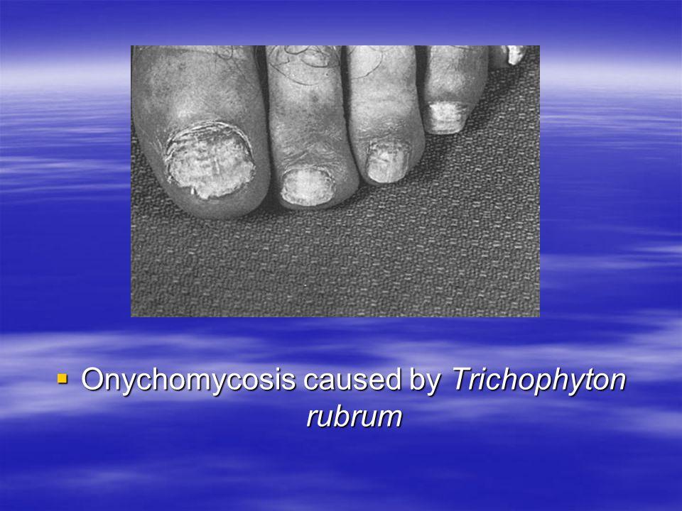 Onychomycosis caused by Trichophyton rubrum Onychomycosis caused by Trichophyton rubrum