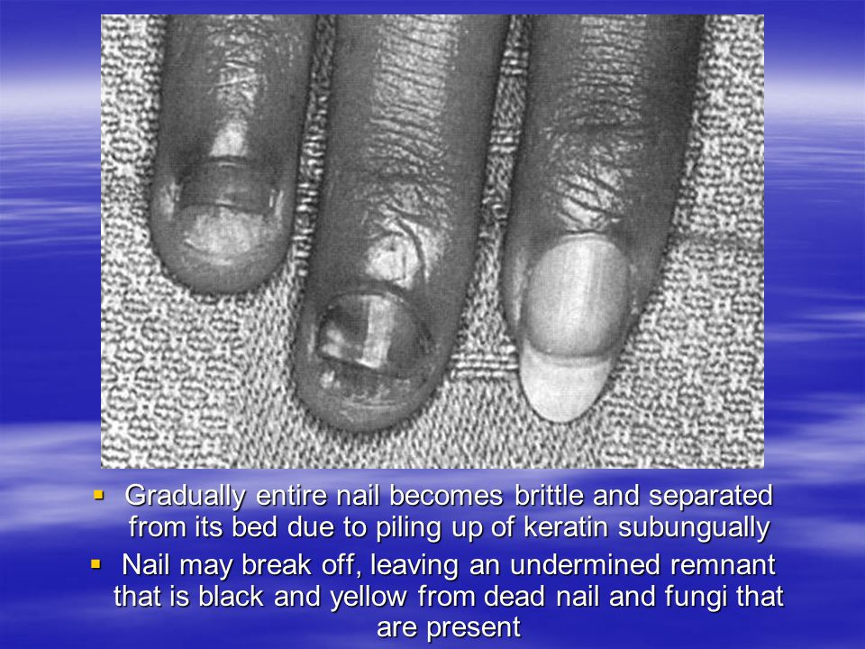 Gradually entire nail becomes brittle and separated from its bed due to piling up of keratin subungually Gradually entire nail becomes brittle and sep
