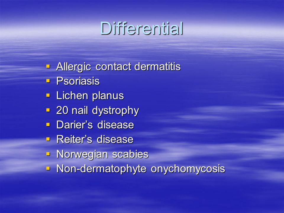Differential Allergic contact dermatitis Allergic contact dermatitis Psoriasis Psoriasis Lichen planus Lichen planus 20 nail dystrophy 20 nail dystrop