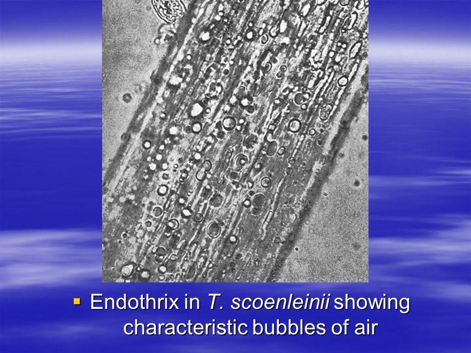 Endothrix in T. scoenleinii showing characteristic bubbles of air Endothrix in T. scoenleinii showing characteristic bubbles of air