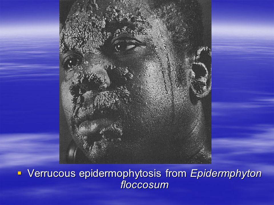 Verrucous epidermophytosis from Epidermphyton floccosum Verrucous epidermophytosis from Epidermphyton floccosum