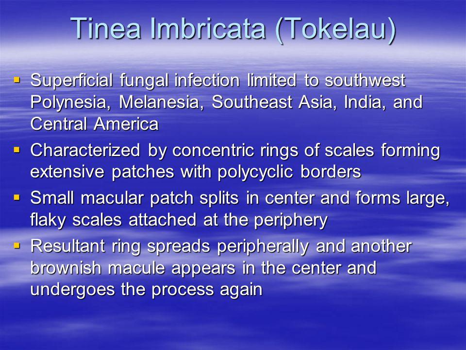 Tinea Imbricata (Tokelau) Superficial fungal infection limited to southwest Polynesia, Melanesia, Southeast Asia, India, and Central America Superfici