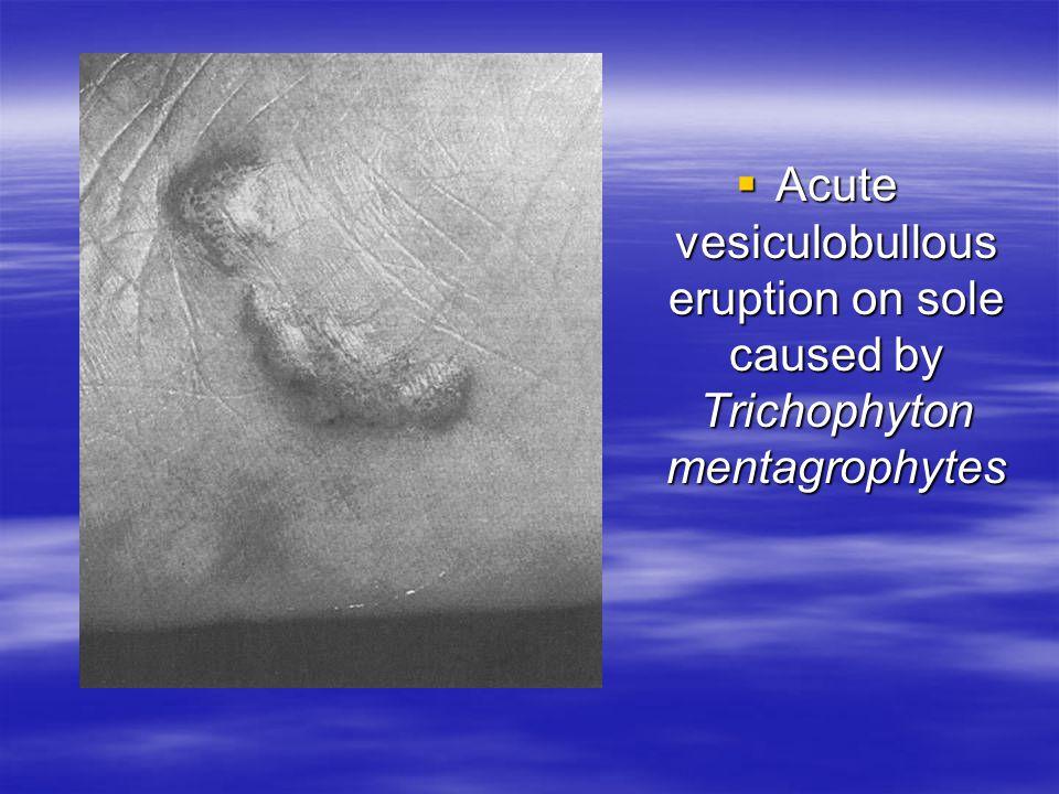 Acute vesiculobullous eruption on sole caused by Trichophyton mentagrophytes Acute vesiculobullous eruption on sole caused by Trichophyton mentagrophy