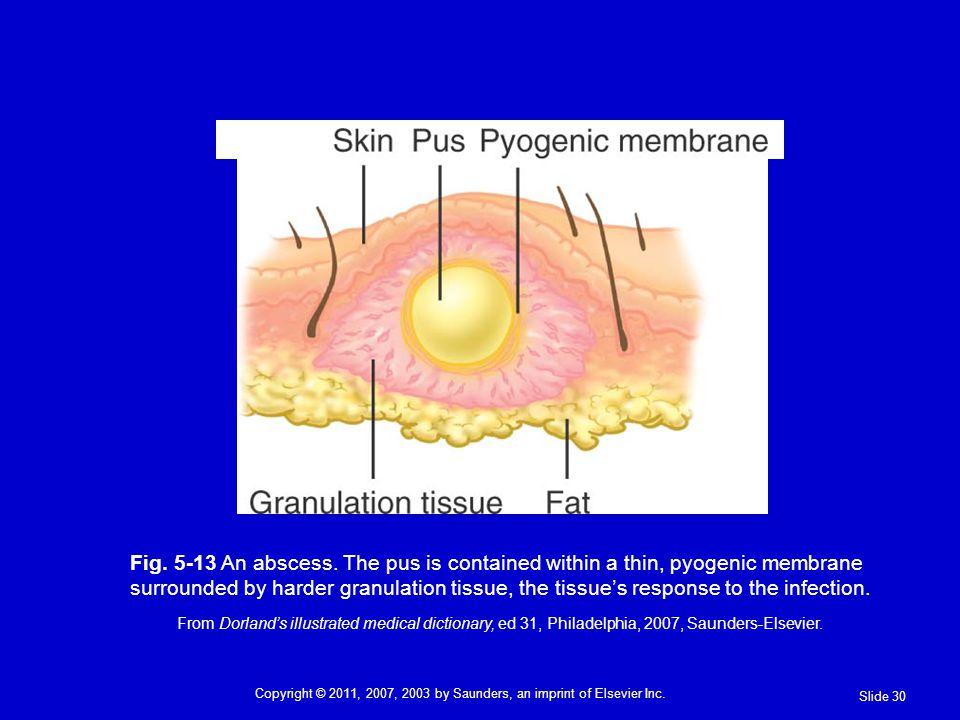 Fig.5-13 An abscess.