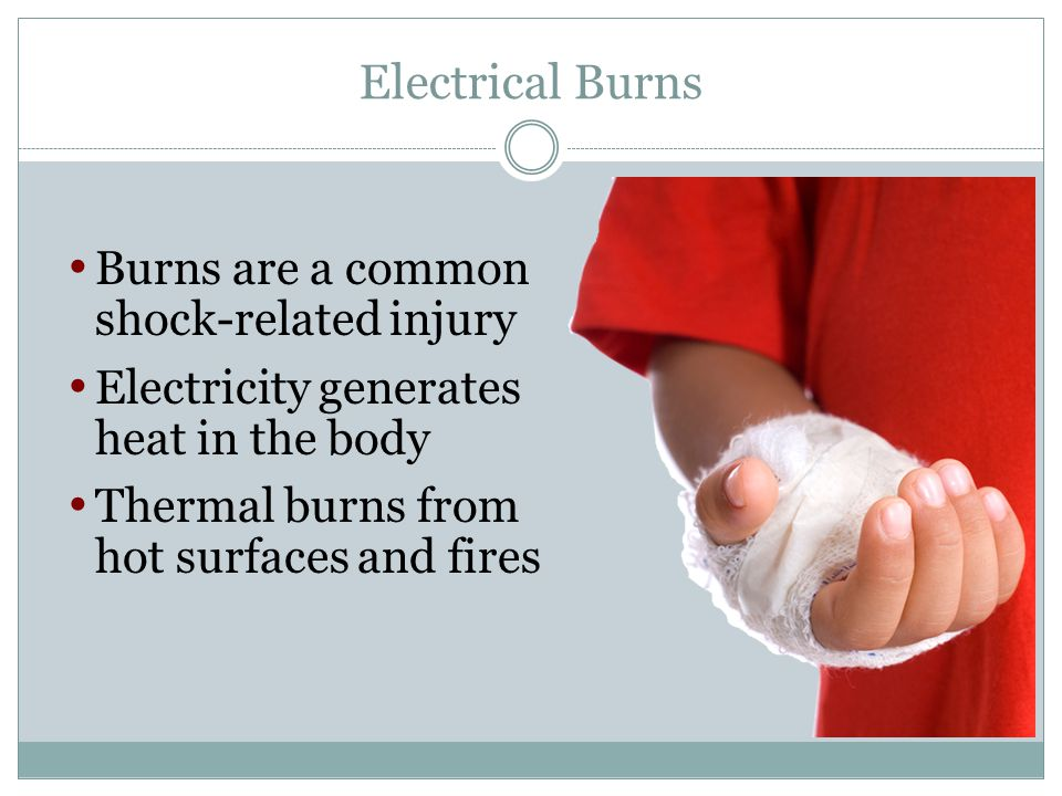 Electrical Burns Burns are a common shock-related injury Electricity generates heat in the body Thermal burns from hot surfaces and fires