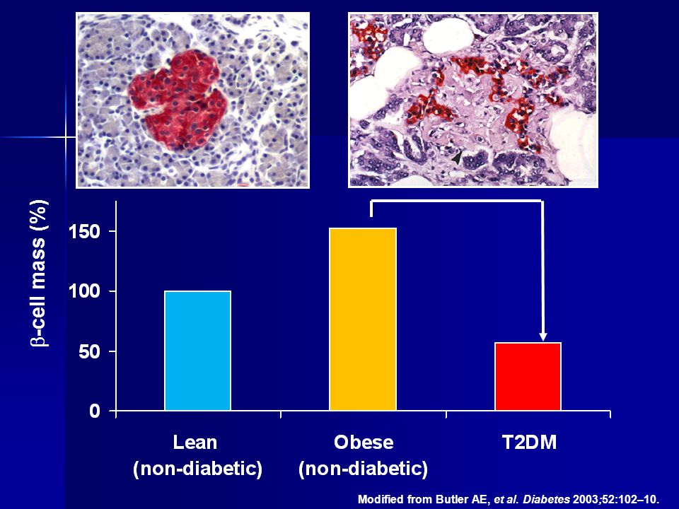 -cell mass (%) ~65% Modified from Butler AE, et al. Diabetes 2003;52:102–10.