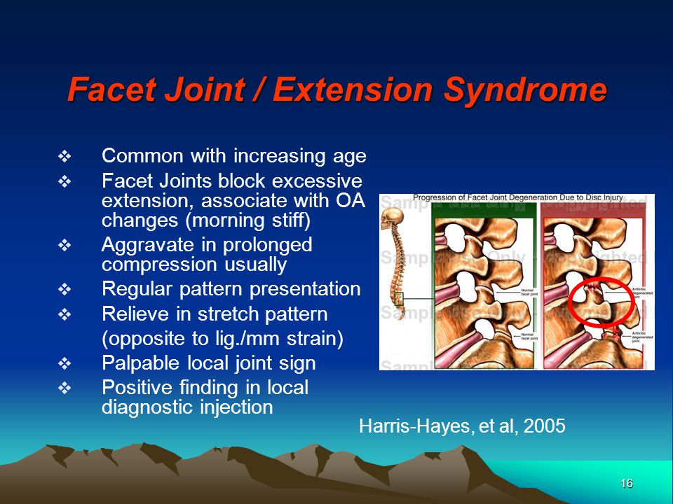 16 Facet Joint / Extension Syndrome Common with increasing age Facet Joints block excessive extension, associate with OA changes (morning stiff) Aggra