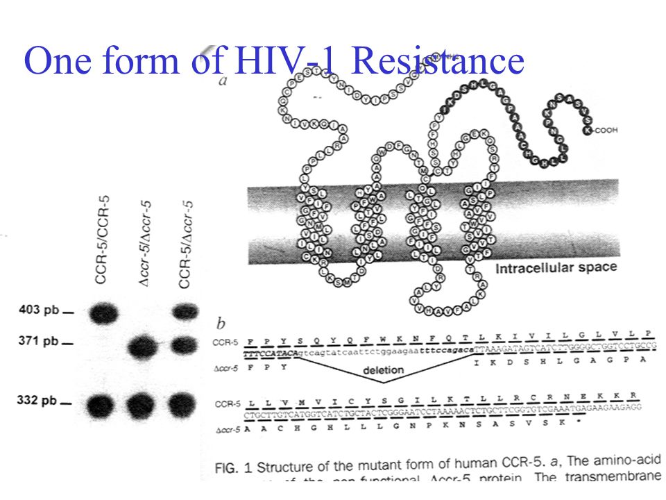 One form of HIV-1 Resistance