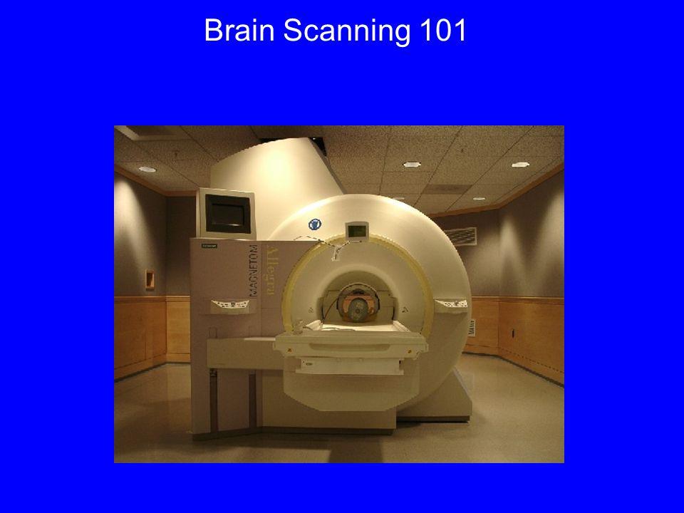 Pattern Classification Method 1.Acquire brain data 2.Generate brain patterns 3.