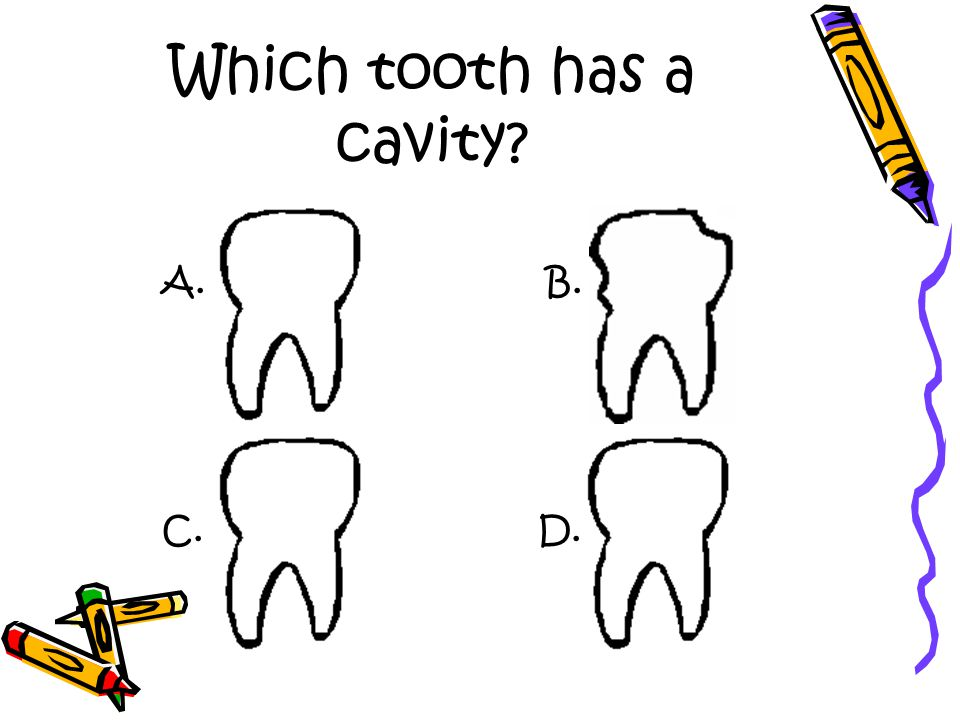 Which tooth has a cavity A. D.C. B.