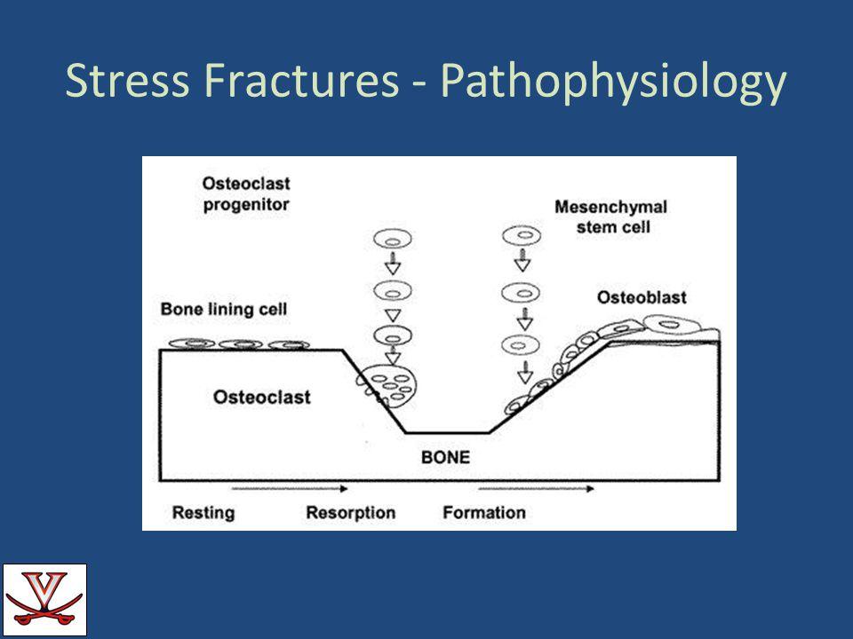Stress Fractures - Pathophysiology