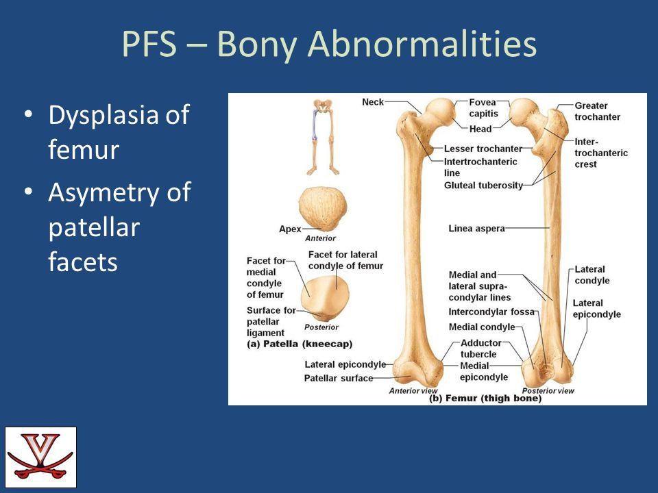 PFS – Bony Abnormalities Dysplasia of femur Asymetry of patellar facets