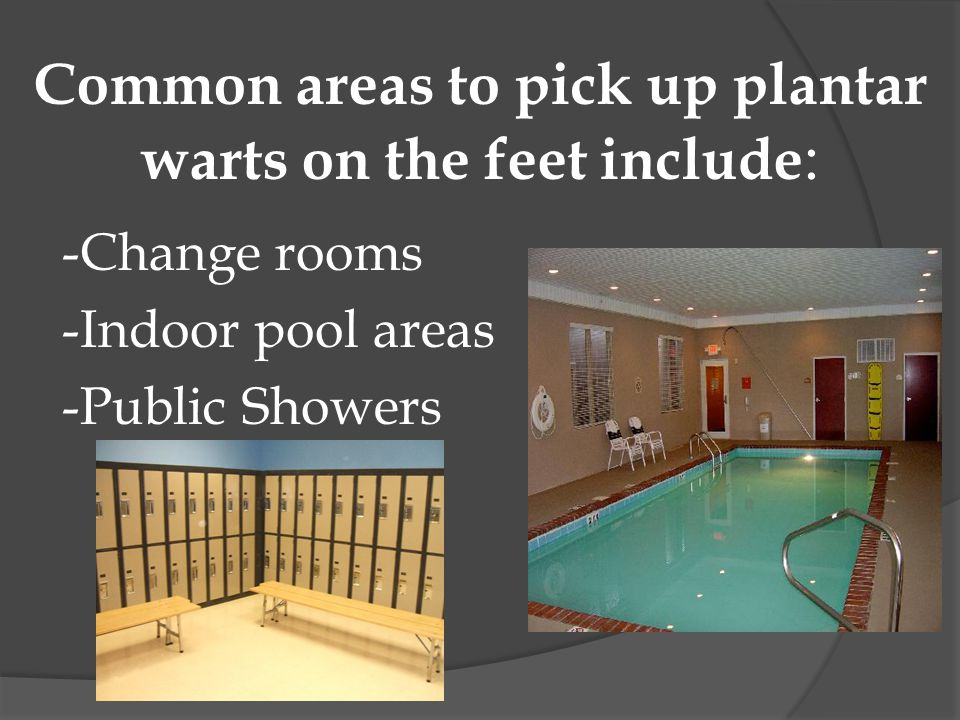 Common areas to pick up plantar warts on the feet include : -Change rooms -Indoor pool areas -Public Showers