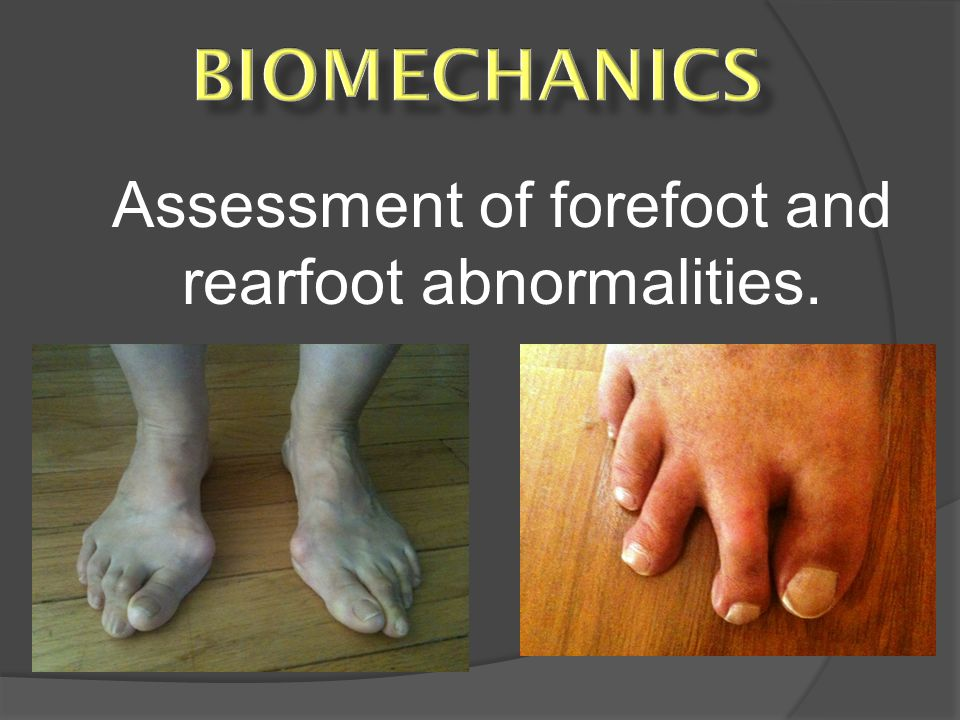 Assessment of forefoot and rearfoot abnormalities.